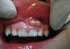 áp xe răng