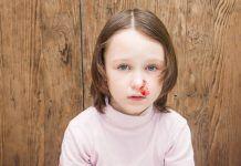 trẻ bị chảy máu cam