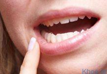 ung thư răng miệng