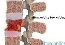 viêm tủy xương