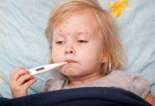 Bệnh sởi ở trẻ em – Tác nhân gây bệnh và những biến chứng nguy hiểm