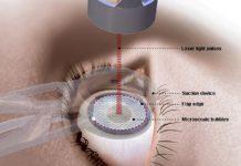 Mổ mắt cận thị giá bao nhiêu?