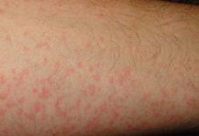 Nổi mẩn ngứa như muỗi đốt là dấu hiệu của bệnh gì?