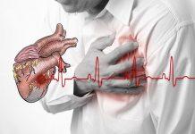 Ngừng tim đột ngột cấp cứu như thế nào?