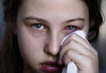 Dịch đau mắt đỏ có dấu hiệu vào mùa