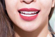 Nhiều người bệnh bị viêm lợi, tụt lợi, có kẽ chỉ đen ở chân răng sau khi làm răng sứ
