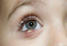 Mách bạn cách phân biệt chắp mắt và lẹo mắt