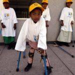 Sốt bại liệt ở trẻ em và những điều cha mẹ cần biết