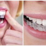 Tẩy trắng răng tại nhà thực hiện sao cho đúng?