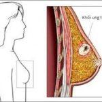 Soi ngực trước gương phát hiện bệnh ung thư vú