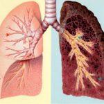 Người đàn ông bị ung thư phổi vì nghiện thuốc lá nhiều năm