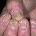 Nấm móng tay có lây không? Cách trị và phòng ngừa nấm móng