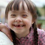 Những điều nên biết về trẻ bị Down