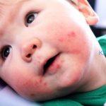 Nguyên nhân, triệu chứng và cách điều trị bệnh Kawasaki ở trẻ