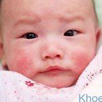 Điểm danh 5 bệnh ngoài da ở trẻ sơ sinh