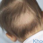 Trẻ bị rụng tóc vành khăn có đáng lo?