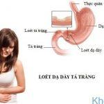 Viêm loét dạ dày: Nguyên nhân, triệu chứng và cách phòng ngừa