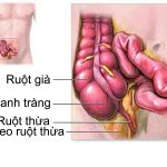 Bạn biết gì về bệnh viêm ruột thừa?