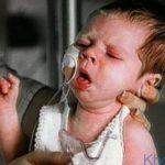 Suy hô hấp ở trẻ sơ sinh – Nguyên nhân và dấu hiệu nhận biết