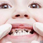 Sâu răng trẻ em - Nguyên nhân và biện pháp chữa trị