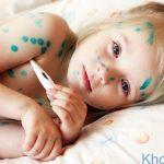 Những biểu hiện và cách điều trị bệnh thủy đậu ở trẻ em