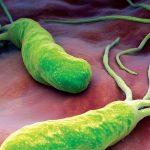 Nhiễm vi khuẩn HP có thể dẫn đến ung thư dạ dày