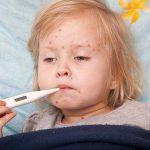 Bệnh sởi và dấu hiệu của bệnh sởi