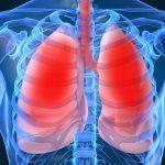 Mọi điều cần biết về triệu chứng xẹp phổi