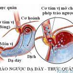 Dấu hiệu nhận biết trào ngược dạ dày thực quản
