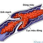 Huyết khối tĩnh mạch là bệnh gì?