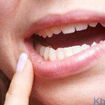 Nhận biết dấu hiệu ung thư răng miệng và ngừa bệnh kịp thời