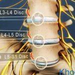 Điều trị thoát vị đĩa đệm cột sống thắt lưng l5 s1
