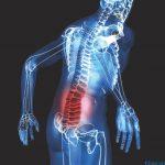 Mọi điều cần biết về triệu chứng ung thư di căn xương