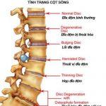 Gai cột sống thắt lưng – Biểu hiện và cách điều trị
