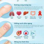 [Inforgraphic] Quan sát móng tay nhận biết vấn đề sức khỏe