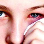 Bệnh đau mắt đỏ và giải pháp phòng ngừa, điều trị bệnh hiệu quả