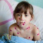 Bệnh thủy đậu và những biến chứng khôn lường