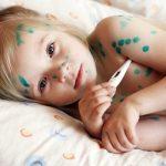Các triệu chứng thủy đậu có thể nhận biết sớm