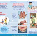 Bảo vệ trẻ trong mùa chân tay miệng