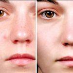 Cách chăm sóc da sau khi bị thủy đậu không bị sẹo